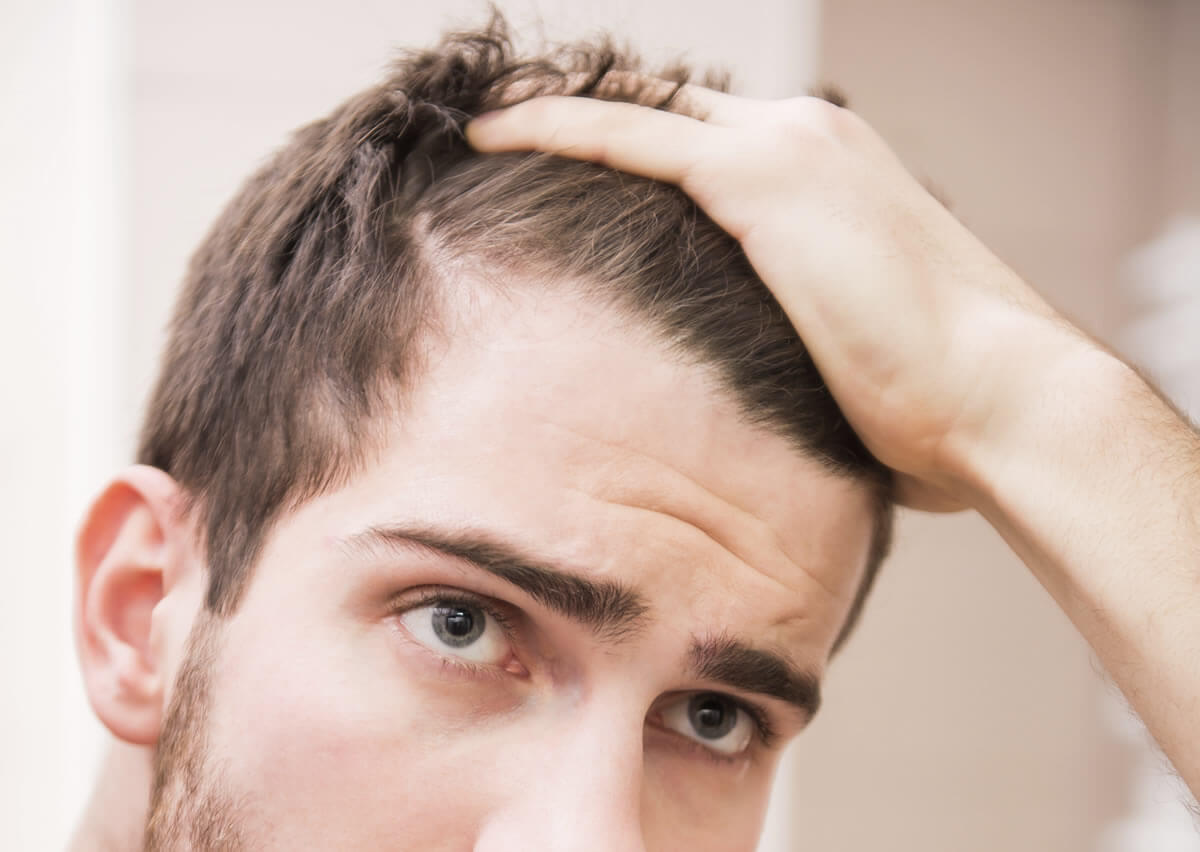 Geheimratsecken frisur mann Kurze Haare