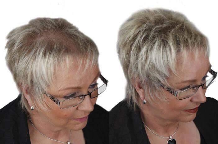 Vorher Nachher Detail Frisuren Kurzhaar Bei Haarausfall Frauen